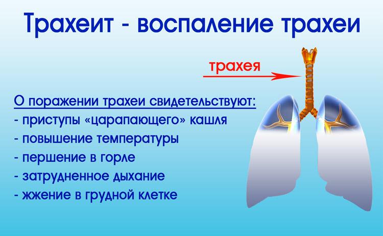 Трахеит без кашл¤ лечение thumbnail
