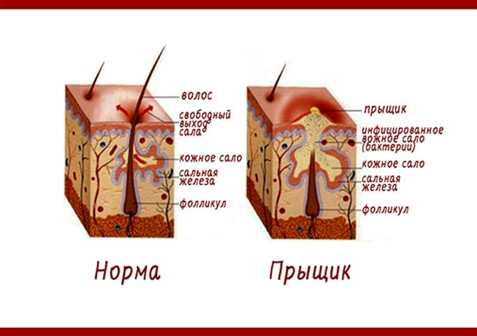 Причины появления прыщей на мочках ушей