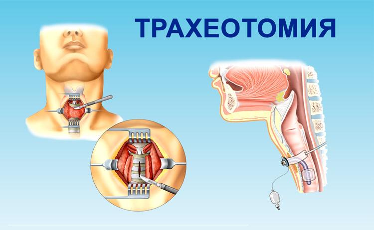 Схема трахеотомии