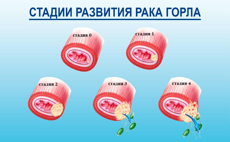 стадии развития рака горла