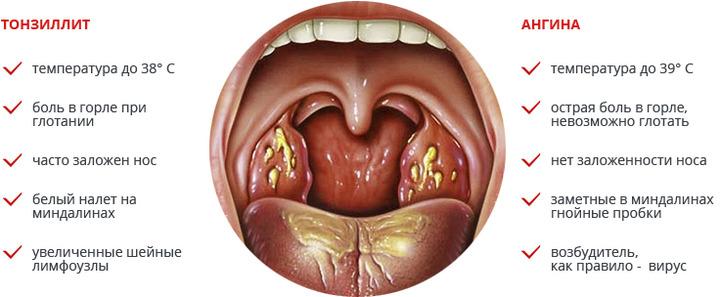 Болит горло слева внизу при глотании thumbnail