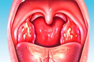 Грибок полости рта и горле
