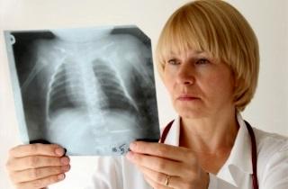 Правильное лечение сердечного кашля