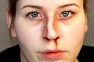 Перелом носа со смещением