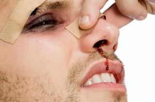 Признаки смещения при переломе носа