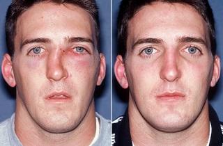 Можно ли восстановить форму носа после перелома