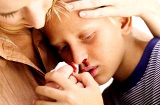 Носовое кровотечение у ребенка при температуре