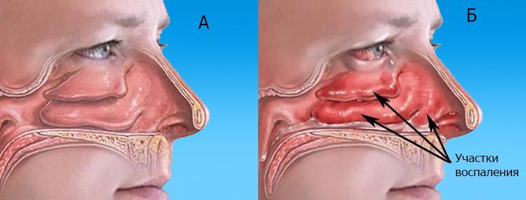 Боль в носу при вдохе