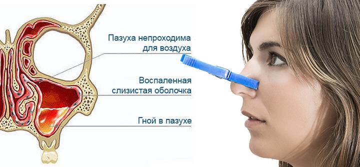 Заложенность носа при гайморите лечение