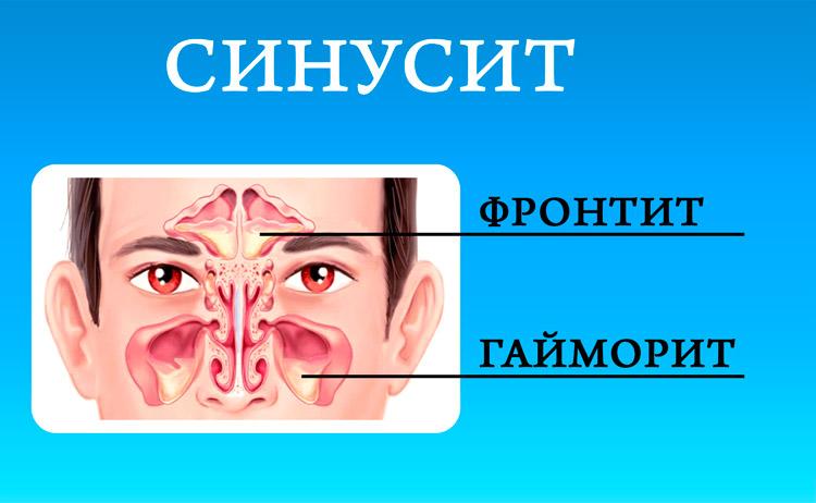 Почему не проходит заложенность носа